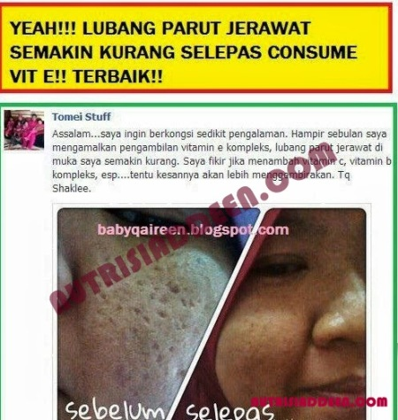 shaklee by wan afzan set skin care 2 testimoni