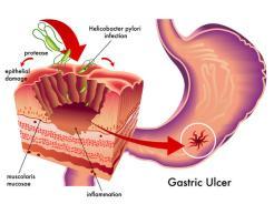 gatric-ulcer