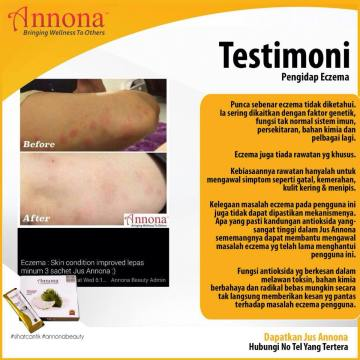 Jus-Annona-Eczema